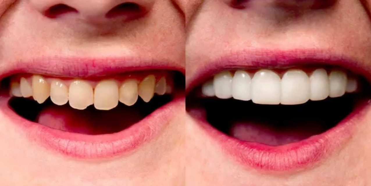 Dental-veneers-uses