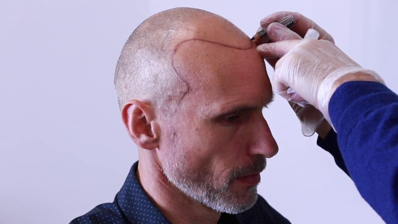 The Perks of Using Scalp Micro Pigmentation For Hair Loss Treatment